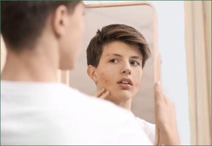 laser acne treatment canton, mi