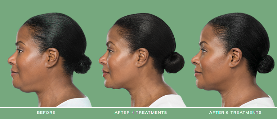 Kybella Double Chin Treatment - Canto, MI