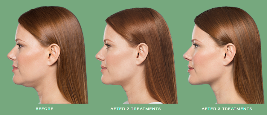 Kybella Double Chin Treatment - Canton, MI